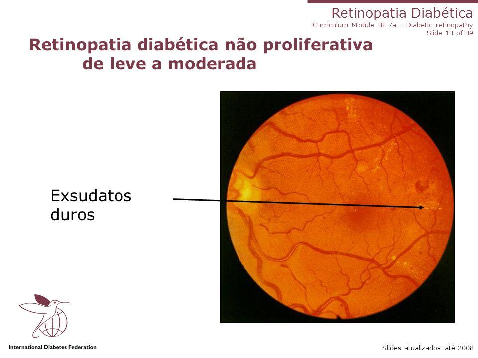 Retinopatia diabética não proliferativa de leve a moderada