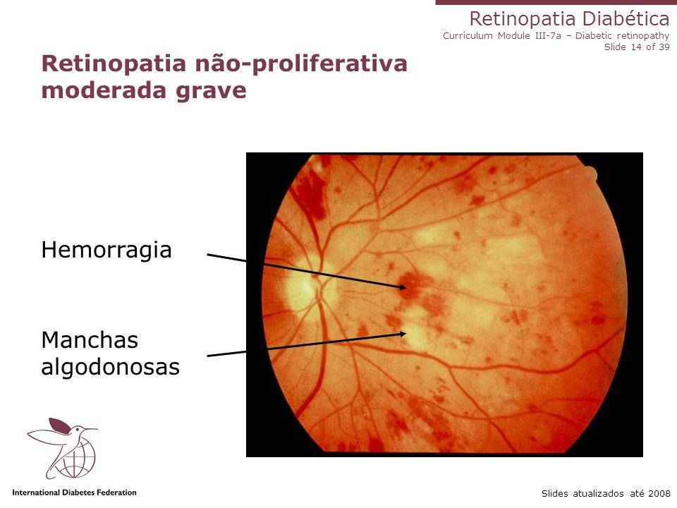 Retinopatia não-proliferativa moderada grave