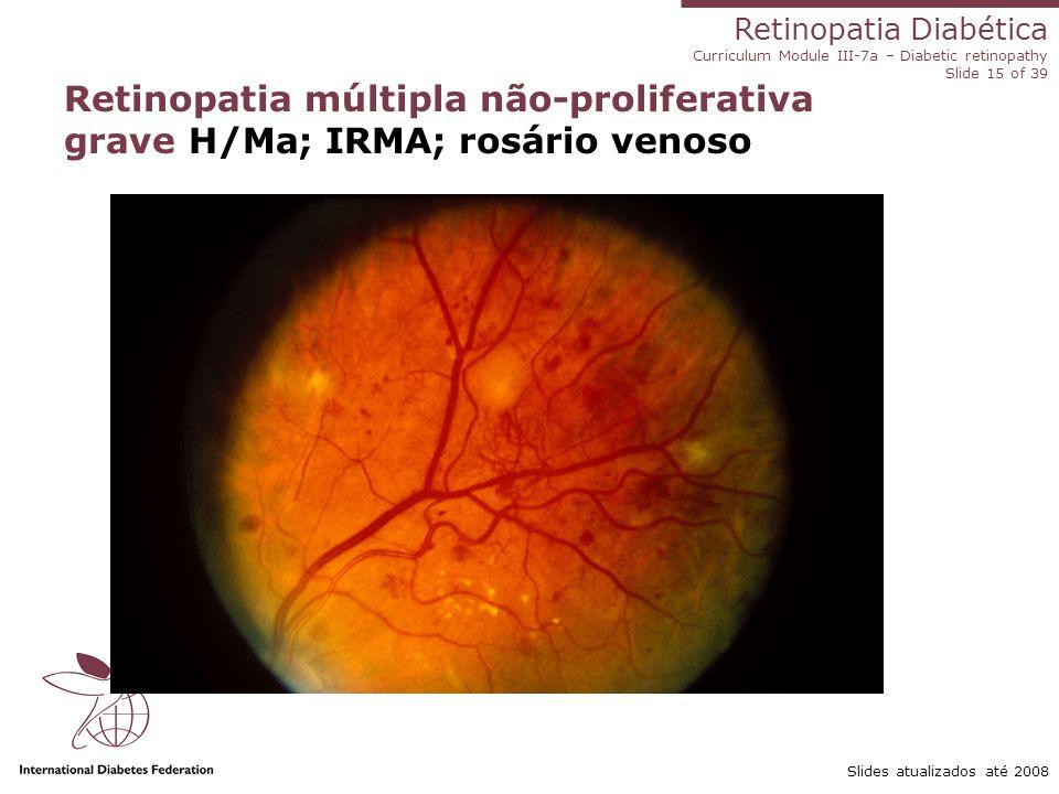 Retinopatia múltipla não-proliferativa grave H/Ma; IRMA; rosário venoso