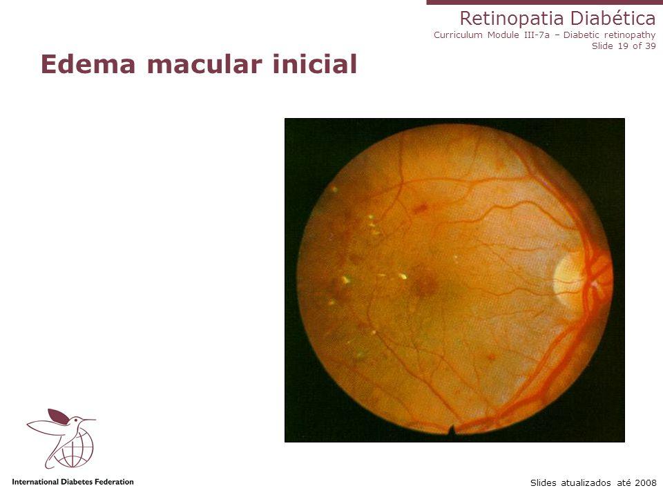 Edema macular inicial