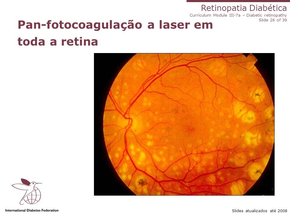 Pan-fotocoagulação a laser em toda a retina