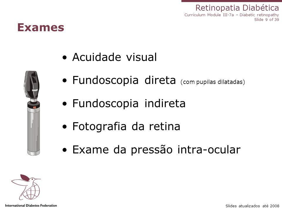 Fundoscopia direta (com pupilas dilatadas) Fundoscopia indireta