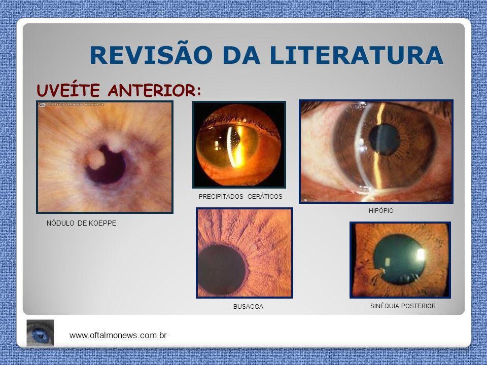 REVISÃO DA LITERATURA UVEÍTE ANTERIOR: www.oftalmonews.com.br