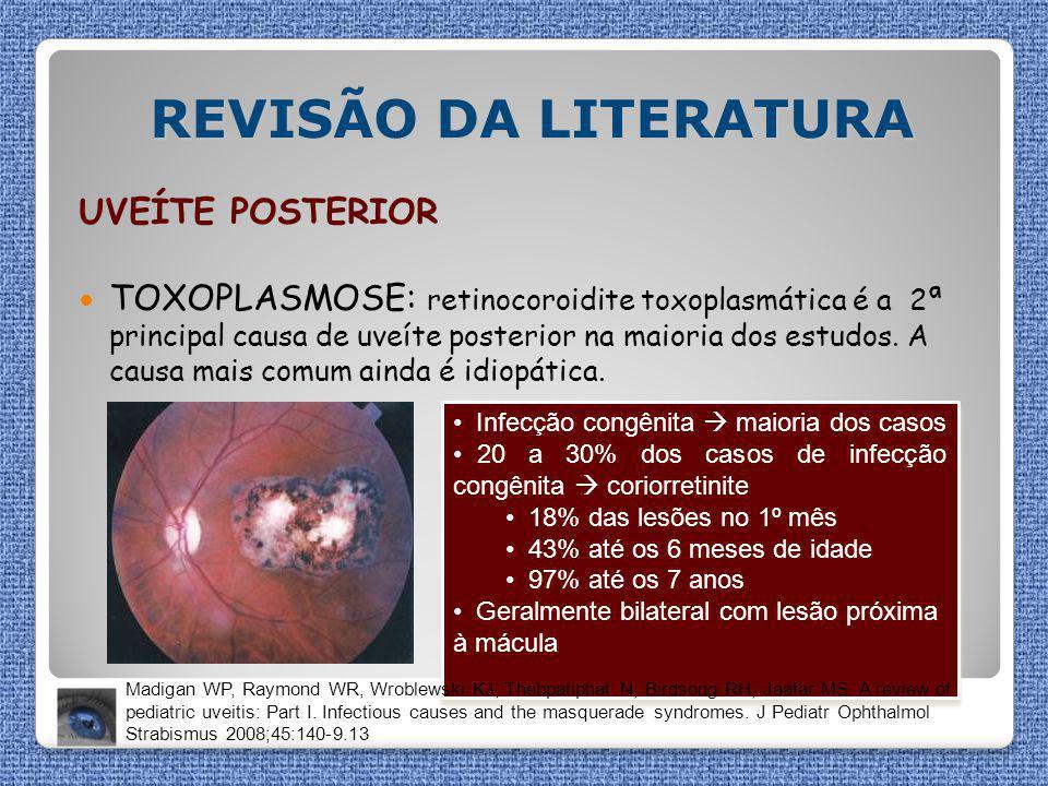REVISÃO DA LITERATURA UVEÍTE POSTERIOR