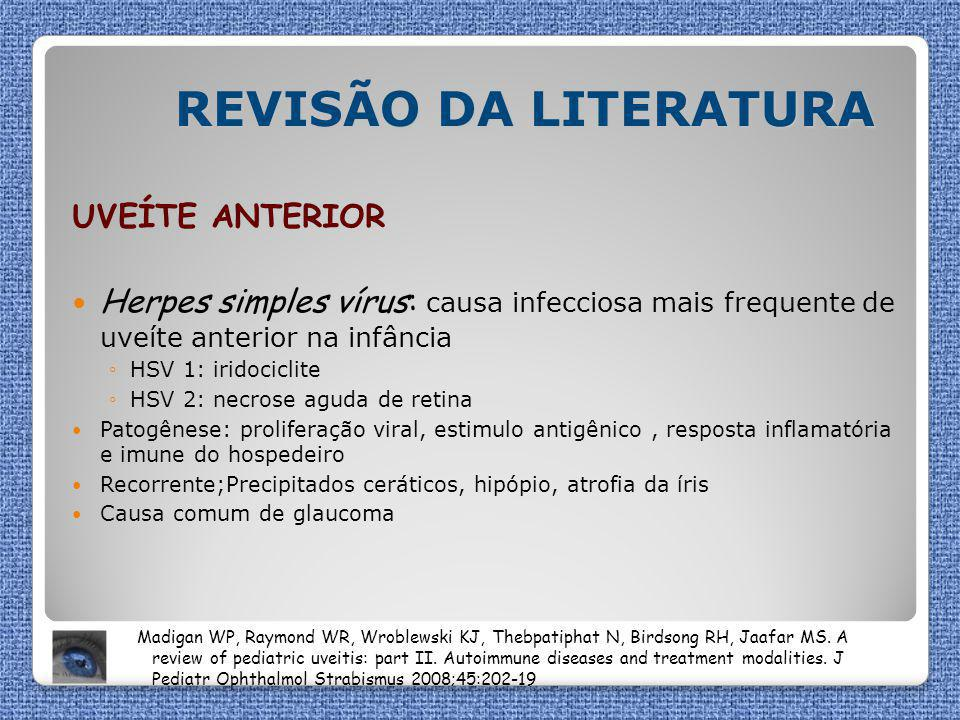 REVISÃO DA LITERATURA UVEÍTE ANTERIOR