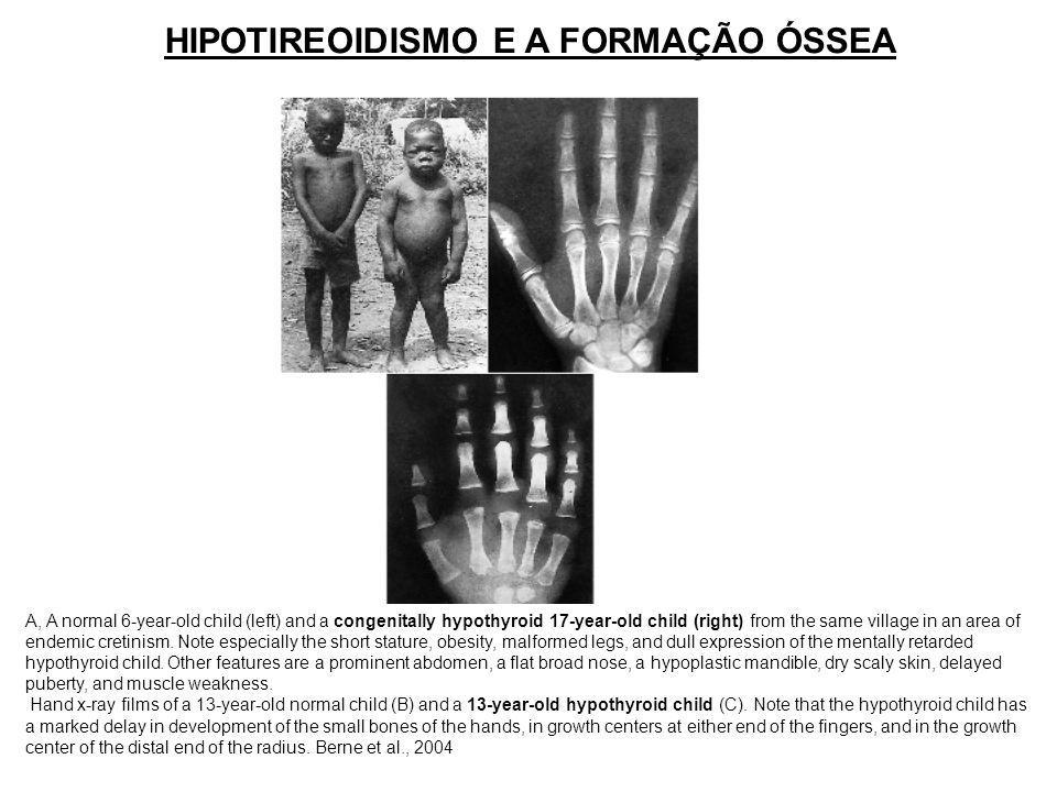 HIPOTIREOIDISMO E A FORMAÇÃO ÓSSEA