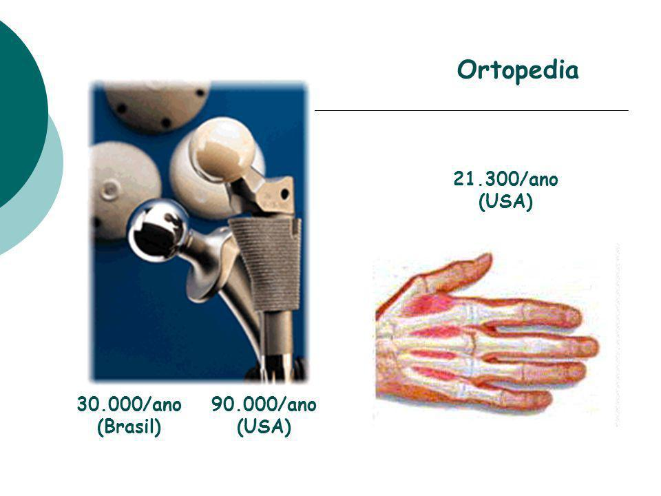 Ortopedia 21.300/ano (USA) 30.000/ano (Brasil) 90.000/ano (USA)