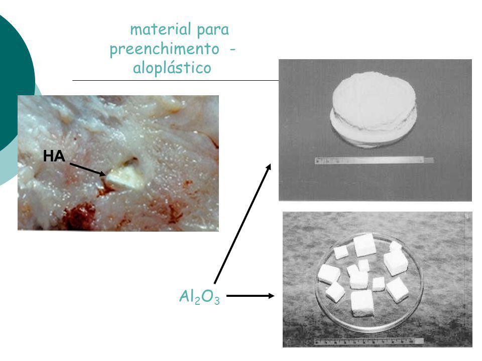 material para preenchimento - aloplástico