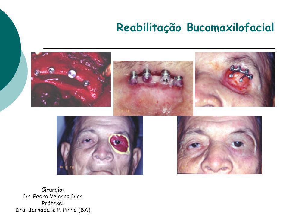 Reabilitação Bucomaxilofacial