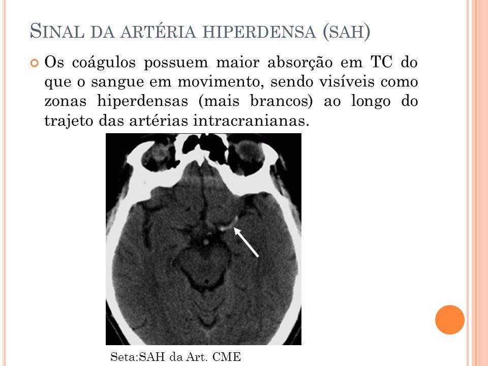 Sinal da artéria hiperdensa (sah)