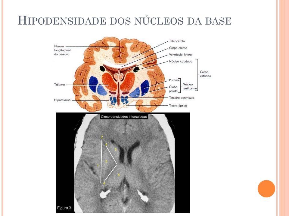 Hipodensidade dos núcleos da base