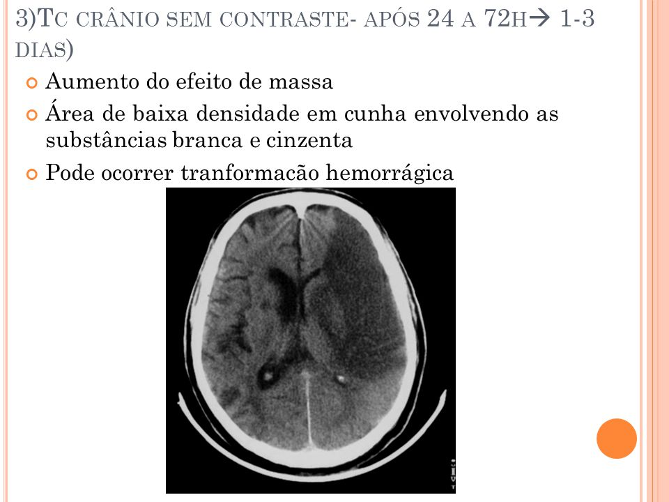3)Tc crânio sem contraste- após 24 a 72h 1-3 dias)