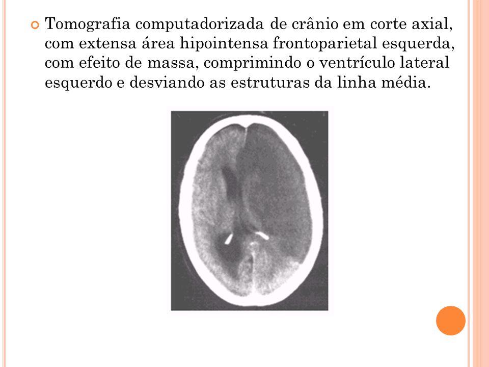 Tomografia computadorizada de crânio em corte axial, com extensa área hipointensa frontoparietal esquerda, com efeito de massa, comprimindo o ventrículo lateral esquerdo e desviando as estruturas da linha média.