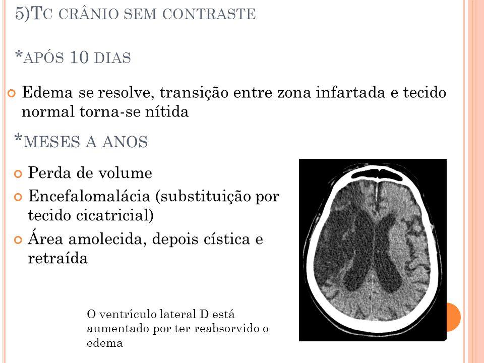 5)Tc crânio sem contraste *após 10 dias