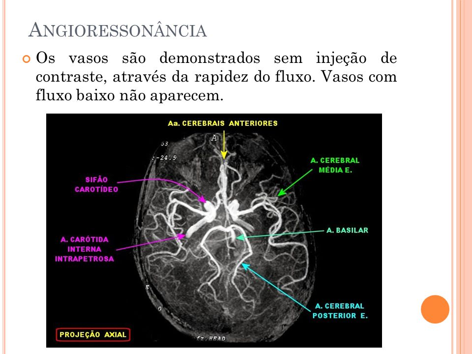 Angioressonância Os vasos são demonstrados sem injeção de contraste, através da rapidez do fluxo.