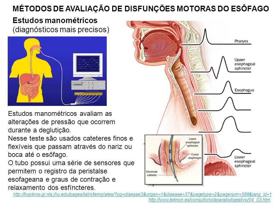 MÉTODOS DE AVALIAÇÃO DE DISFUNÇÕES MOTORAS DO ESÔFAGO