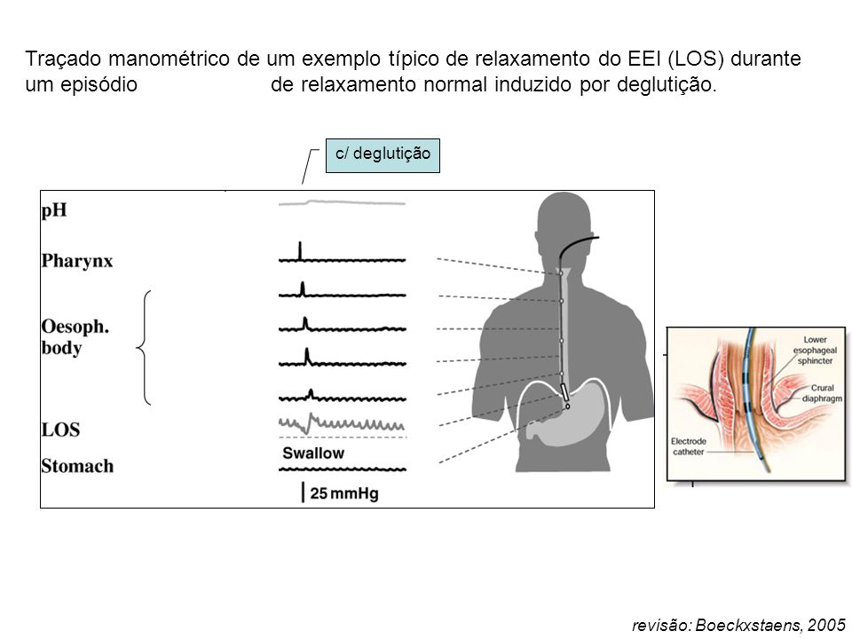 Refluxo gastro-esofageano