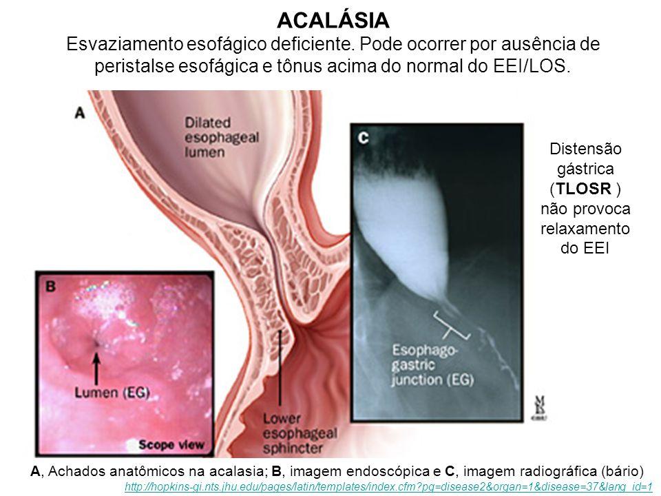 Distensão gástrica (TLOSR ) não provoca relaxamento do EEI