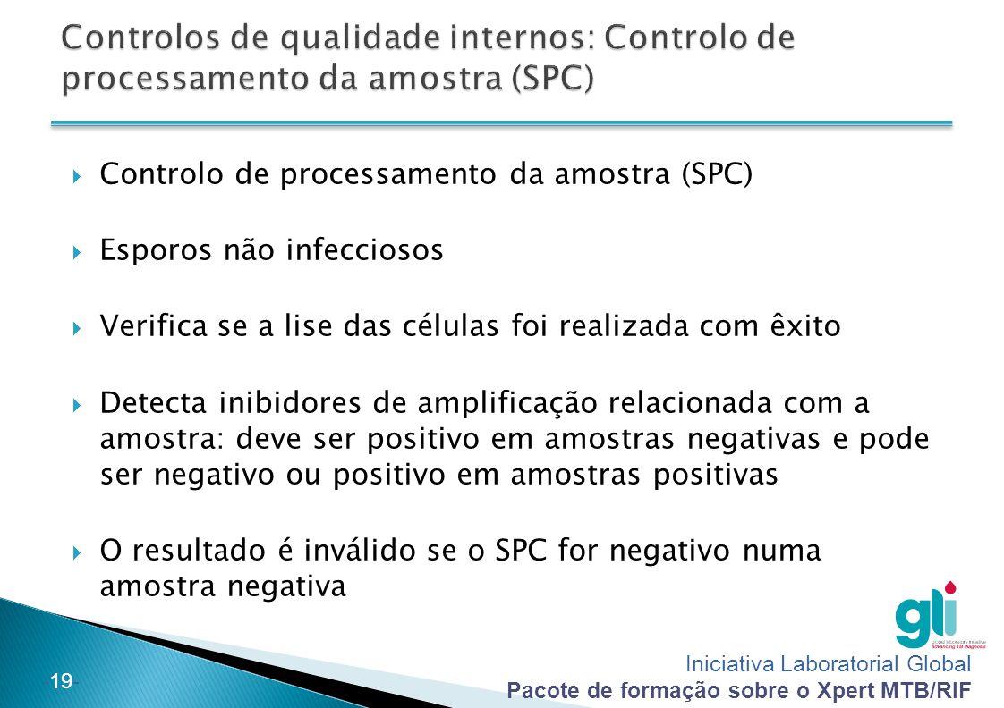 Controlos de qualidade internos: Controlo de processamento da amostra (SPC)