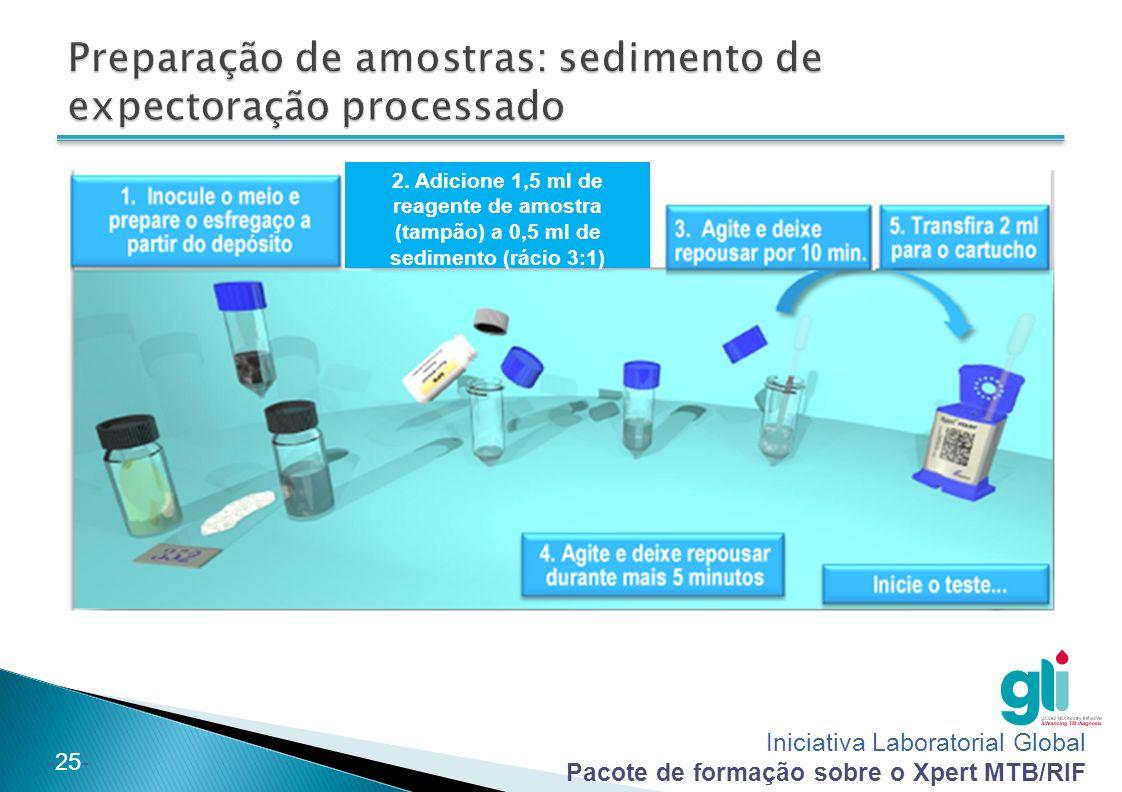 Preparação de amostras: sedimento de expectoração processado