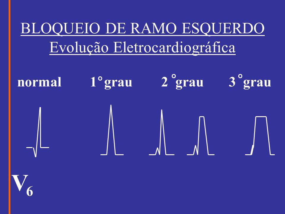 BLOQUEIO DE RAMO ESQUERDO Evolução Eletrocardiográfica