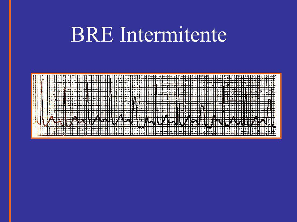 BRE Intermitente