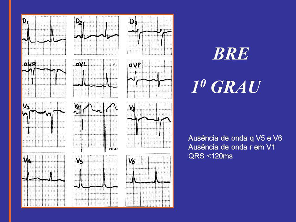 BRE 10 GRAU Ausência de onda q V5 e V6 Ausência de onda r em V1