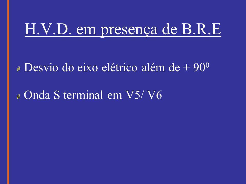 H.V.D. em presença de B.R.E # Desvio do eixo elétrico além de + 900
