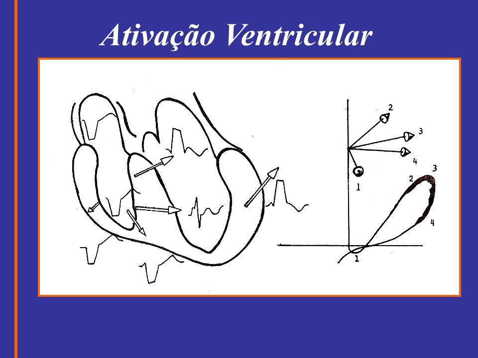 Ativação Ventricular