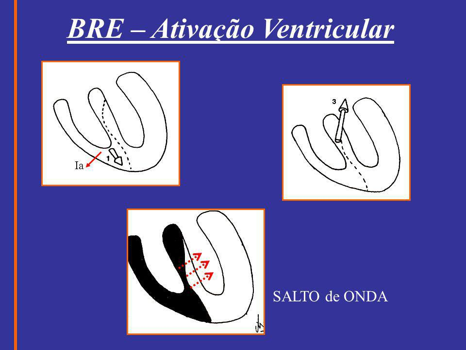 BRE – Ativação Ventricular