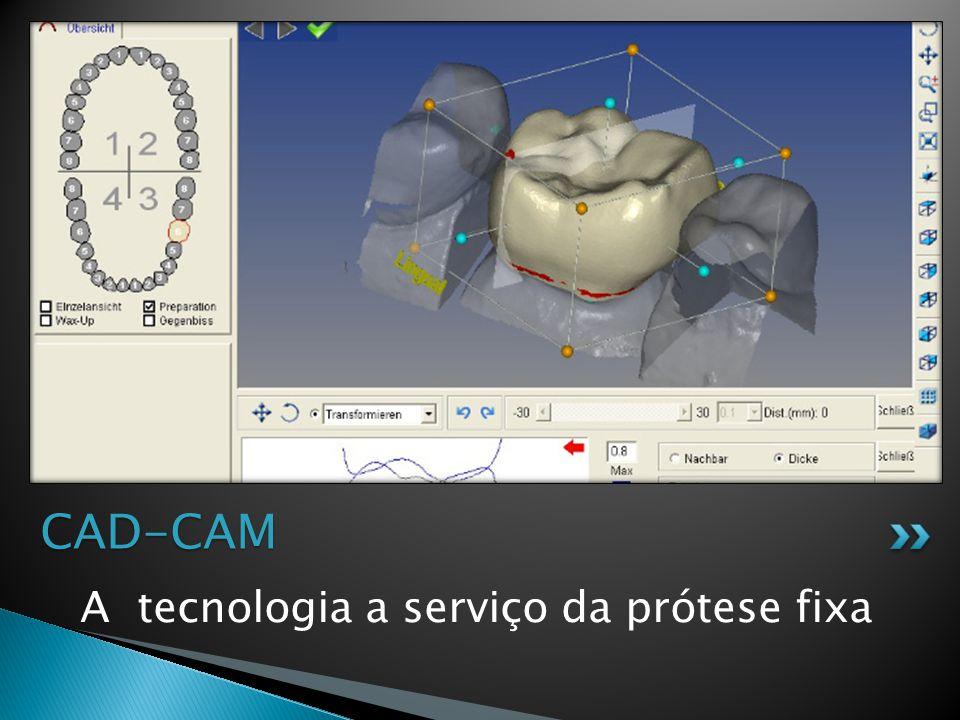 CAD-CAM A tecnologia a serviço da prótese fixa