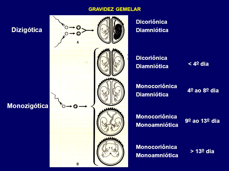 Dizigótica Monozigótica