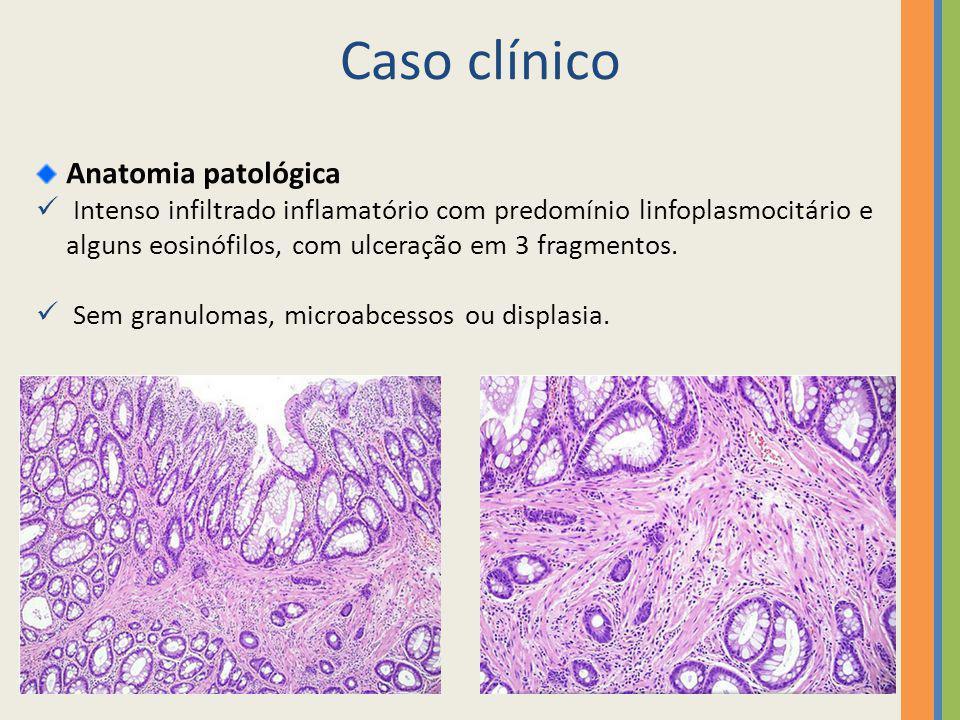 Caso clínico Anatomia patológica