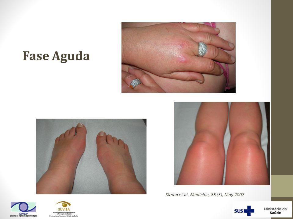 Fase Aguda Simon et al. Medicine, 86 (3), May 2007