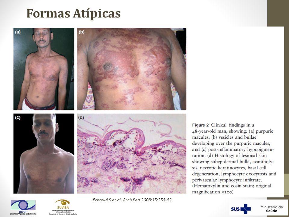 Formas Atípicas Ernould S et al. Arch Ped 2008;15:253-62