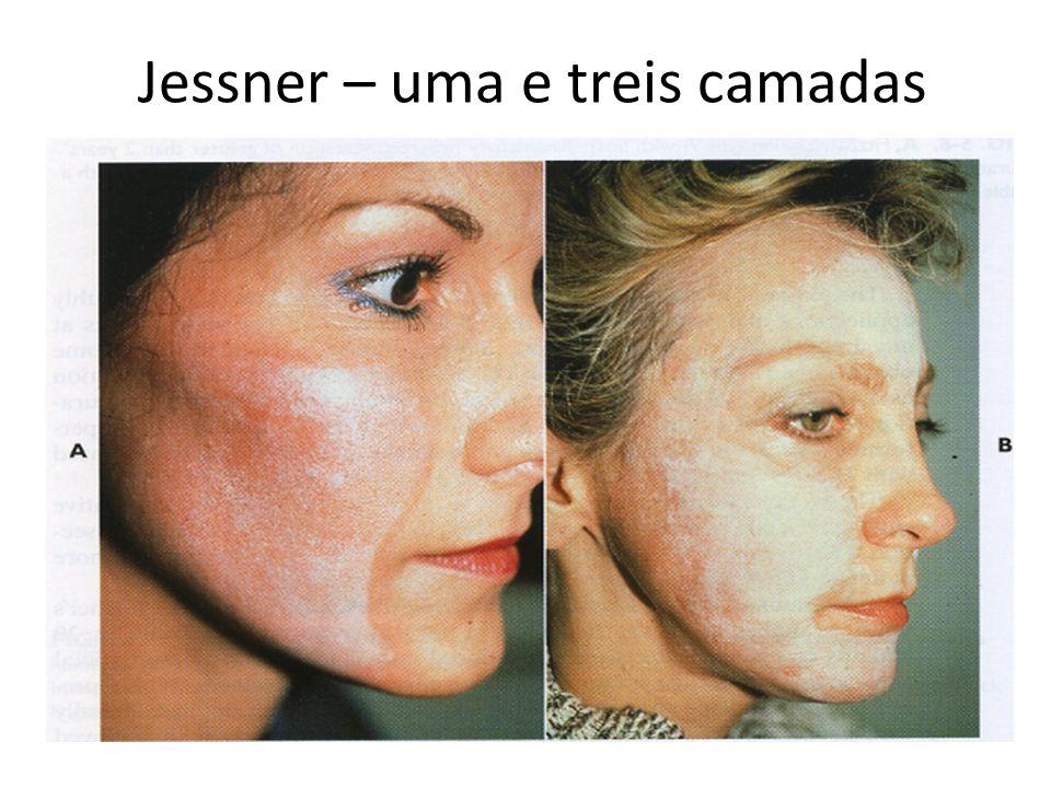 Jessner – uma e treis camadas