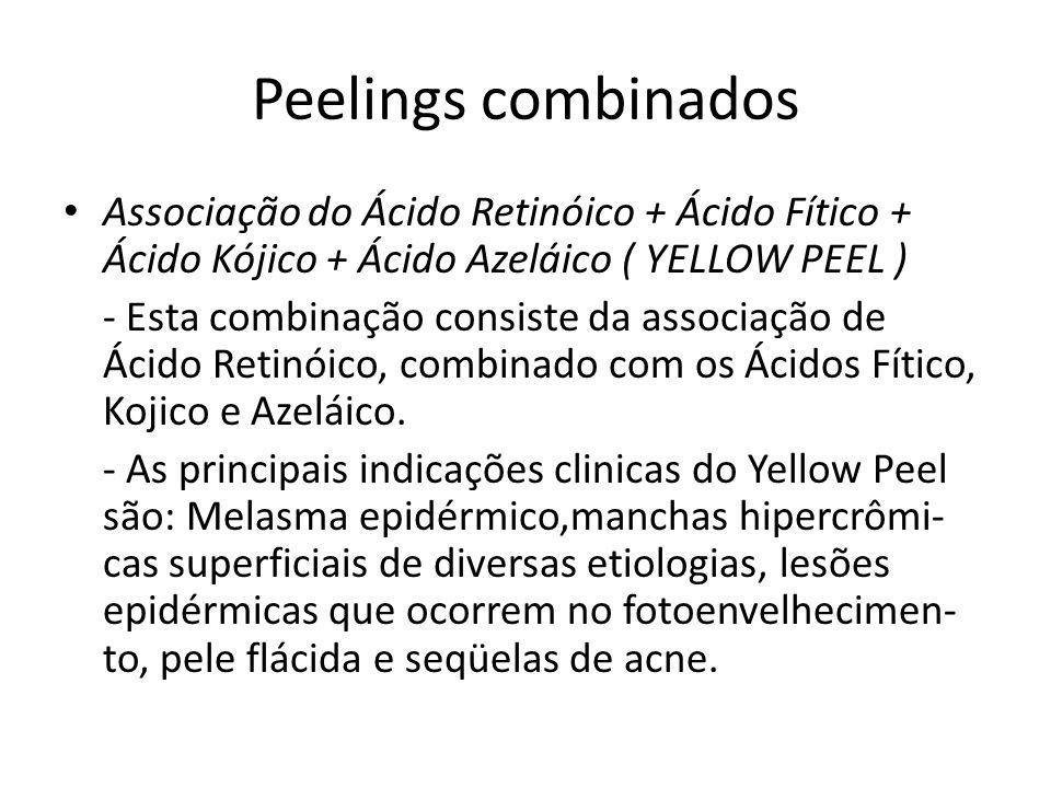 Peelings combinados Associação do Ácido Retinóico + Ácido Fítico + Ácido Kójico + Ácido Azeláico ( YELLOW PEEL )