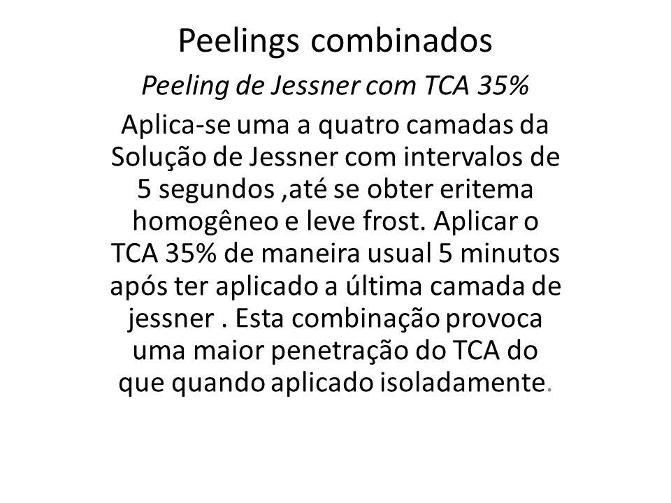 Peeling de Jessner com TCA 35%