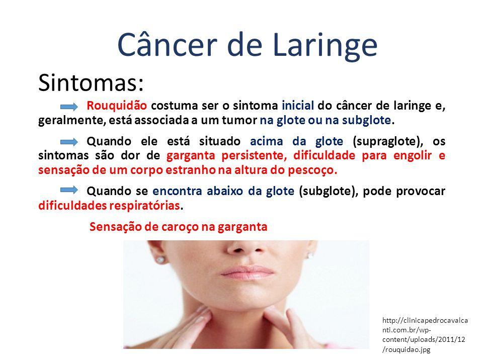 Câncer de Laringe Sintomas: