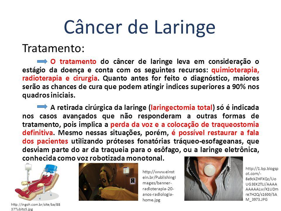 Câncer de Laringe Tratamento: