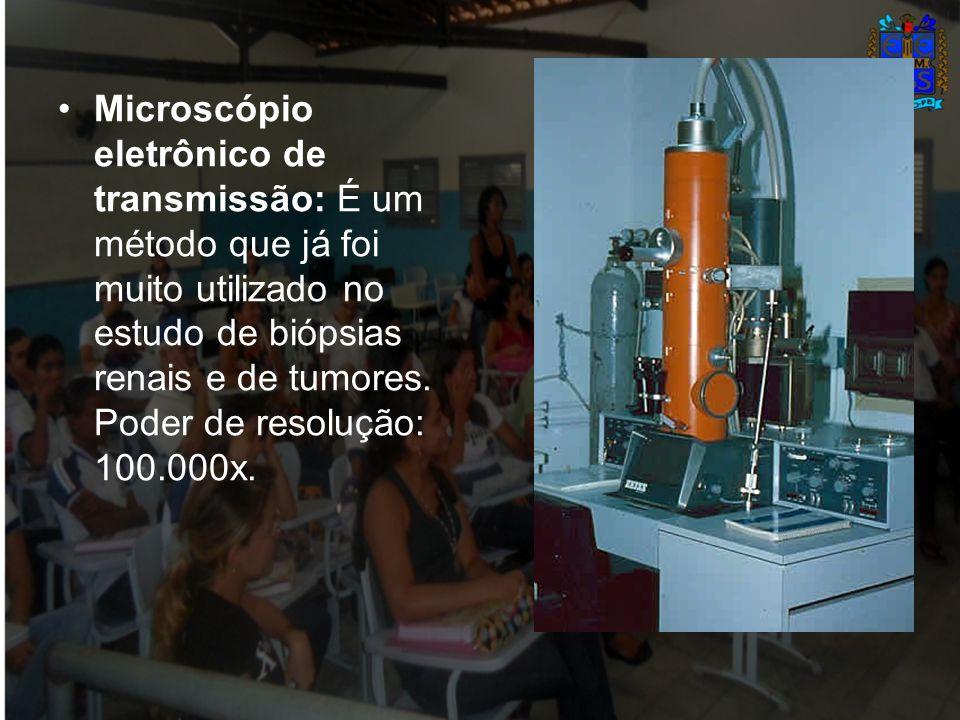 Microscópio eletrônico de transmissão: É um método que já foi muito utilizado no estudo de biópsias renais e de tumores.