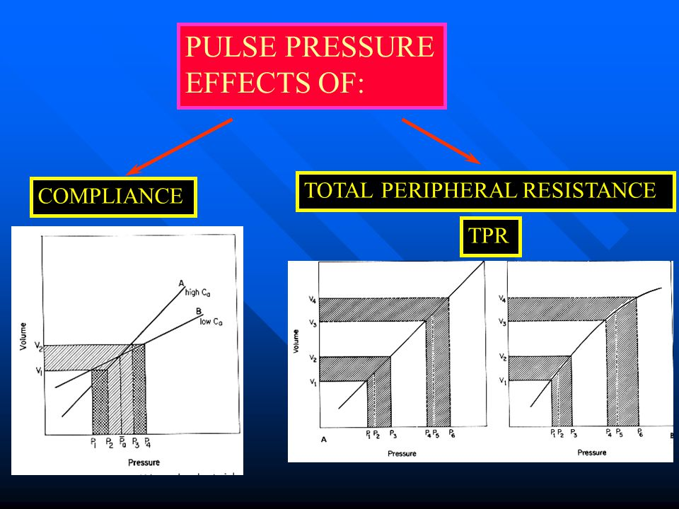 PULSE PRESSURE EFFECTS OF: TOTAL PERIPHERAL RESISTANCE COMPLIANCE TPR