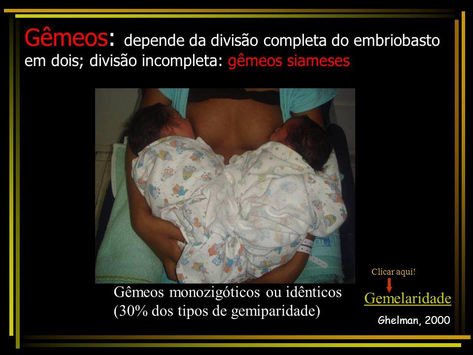 Gêmeos: depende da divisão completa do embriobasto em dois; divisão incompleta: gêmeos siameses