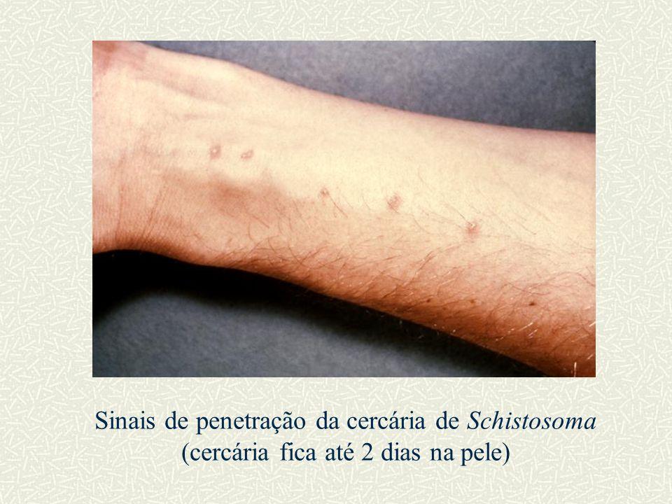 Sinais de penetração da cercária de Schistosoma