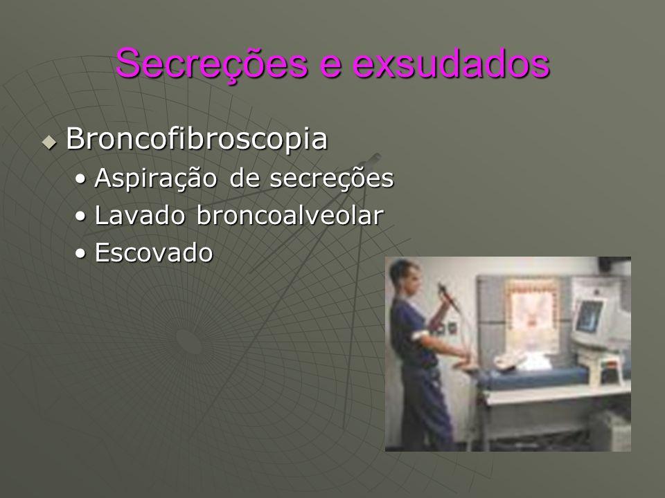 Secreções e exsudados Broncofibroscopia Aspiração de secreções