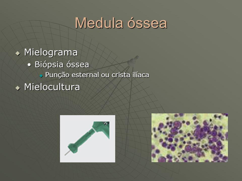 Medula óssea Mielograma Mielocultura Biópsia óssea