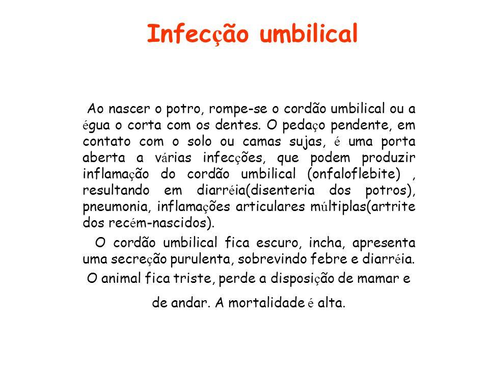 Infecção umbilical