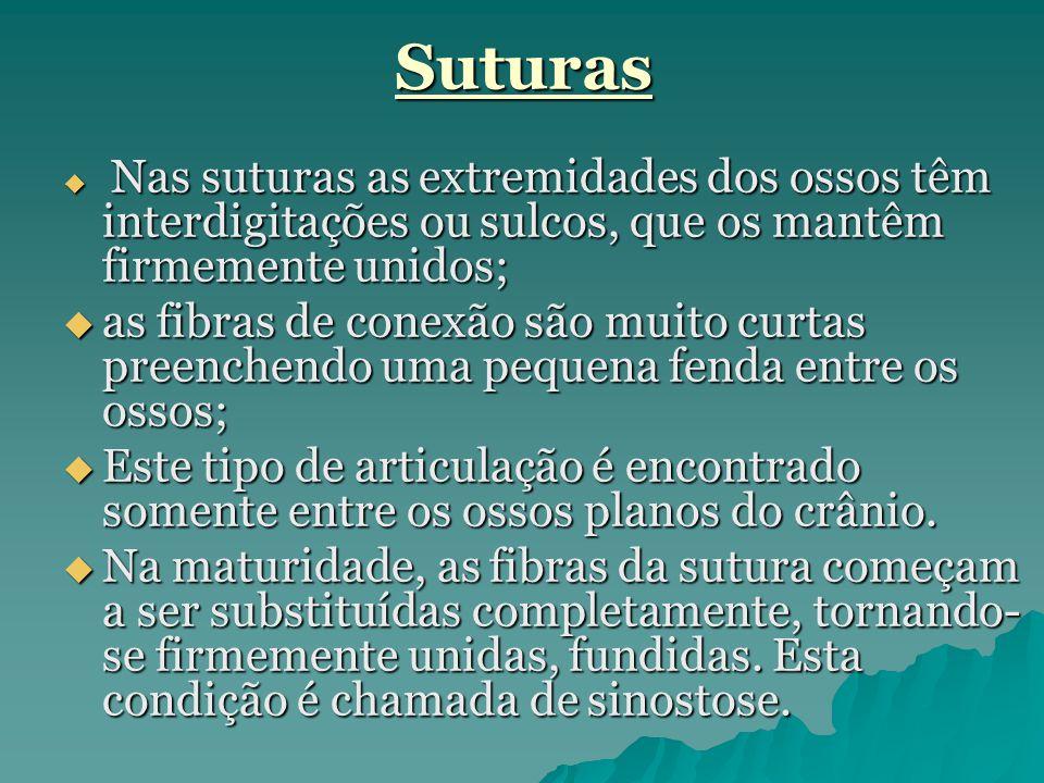 Suturas Nas suturas as extremidades dos ossos têm interdigitações ou sulcos, que os mantêm firmemente unidos;