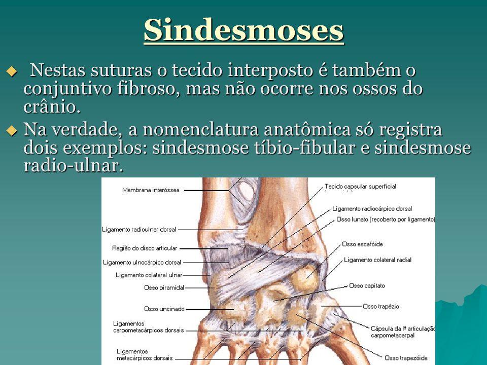 Sindesmoses Nestas suturas o tecido interposto é também o conjuntivo fibroso, mas não ocorre nos ossos do crânio.