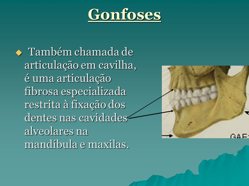 Gonfoses